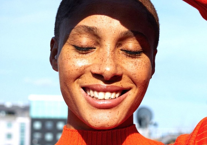 Adwoa Aboah, mannequin dévoile son acné et décide de s'accepter sur les réseaux sociaux !
