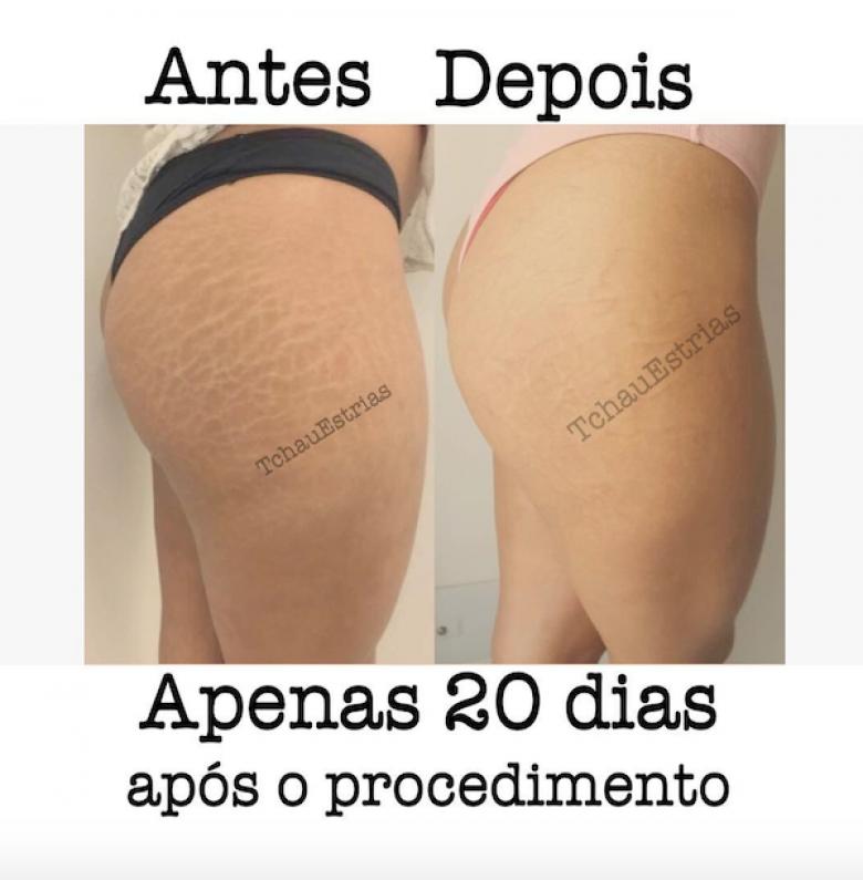 ce tatoueur brésilien a pour spécialité de recouvrir les vergetures