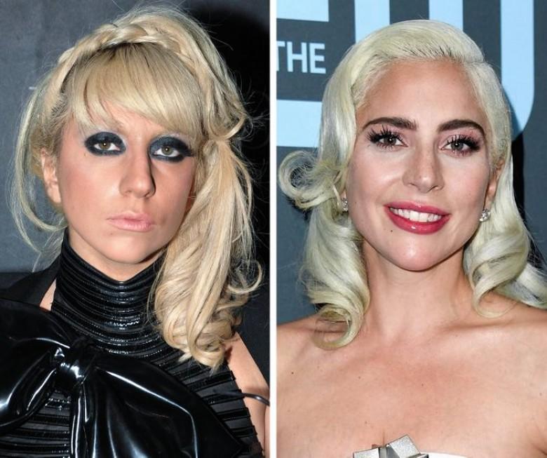 10 ans après, ces stars ont beaucoup changé !