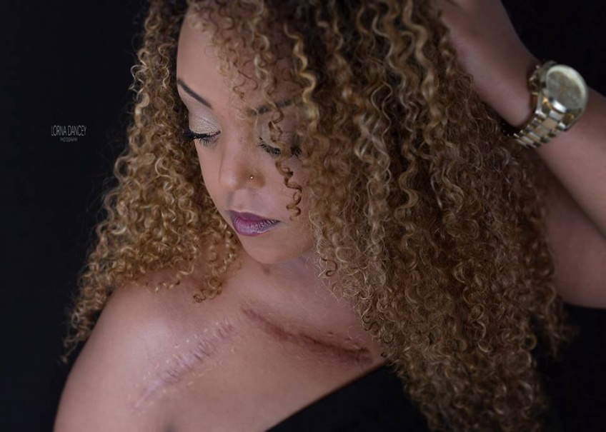 SCARS Project : une série de photos pour magnifier les cicatrices