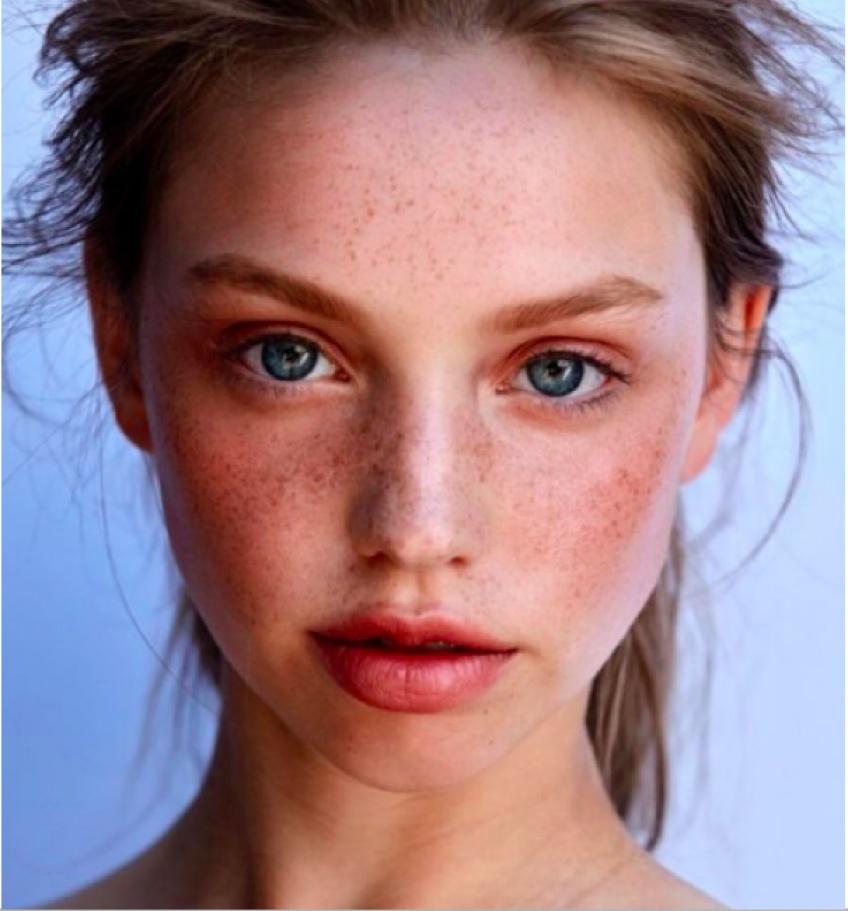 Comment éviter d'avoir la peau qui pèle au retour de vacances ?