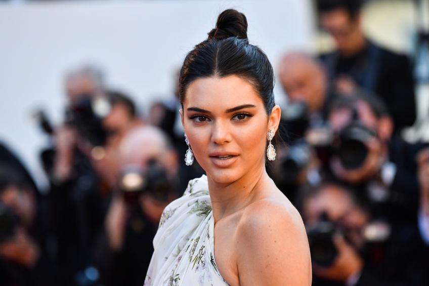 10 Year Challenge : Kendall Jenner dévoile ses problèmes avec l'acné