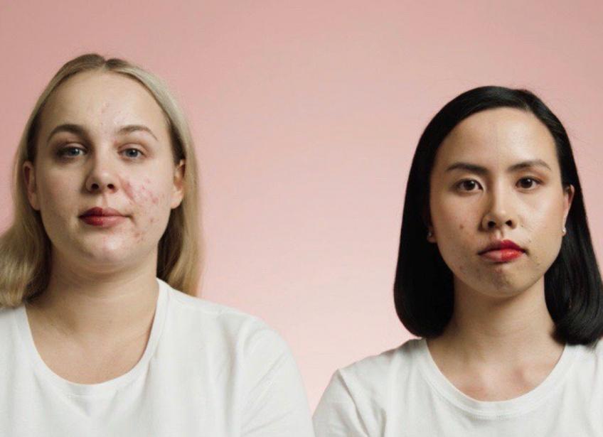 Bioderma UK lance une campagne Embrace Your Skin avec des personnes atteintes d'acné !