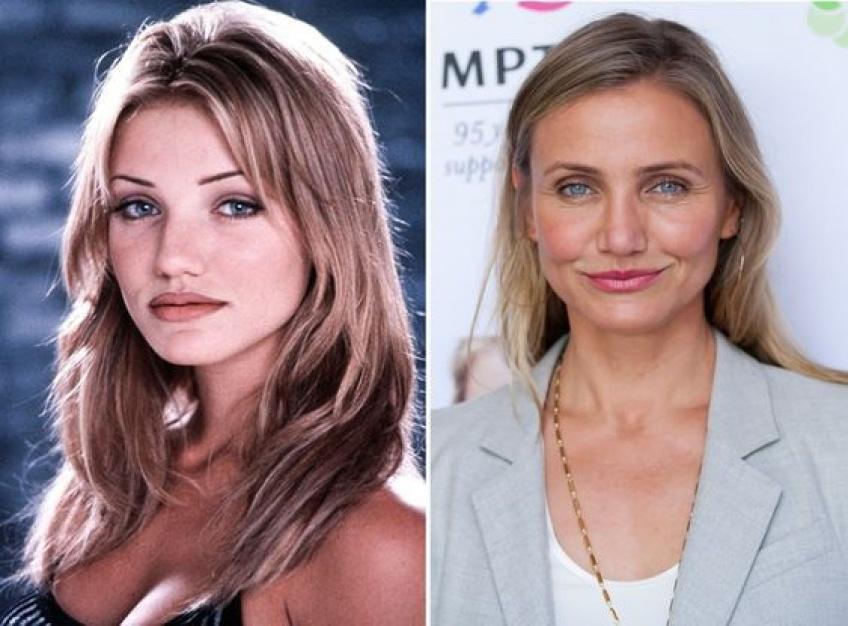 Ces célébrités qui ont bien changé avec le temps !