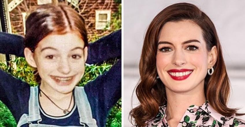 Ces stars qui sont devenues belles au fil des années