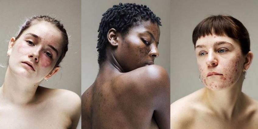 Cette série de photos magnifie les problèmes de peau !