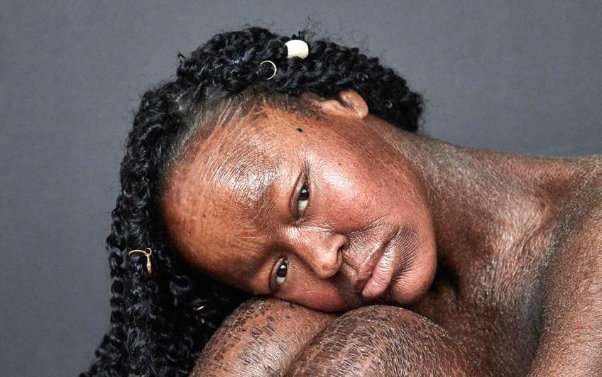 Cette jeune femme atteinte d'une maladie cutanée rare devient mannequin !