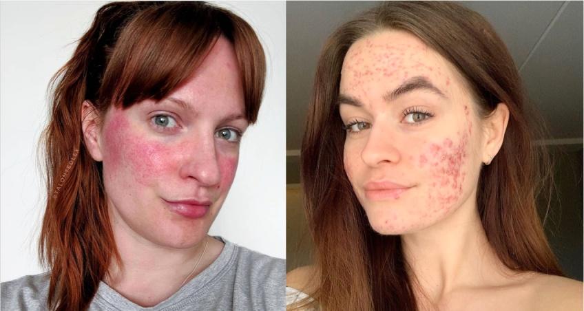 #SkinPositivity : le mouvement qui casse les diktats de la beauté !