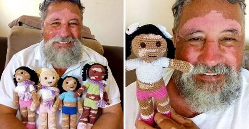 Ce grand-père a tricoté des poupées vitiligo pour aider les enfants à s'assumer !