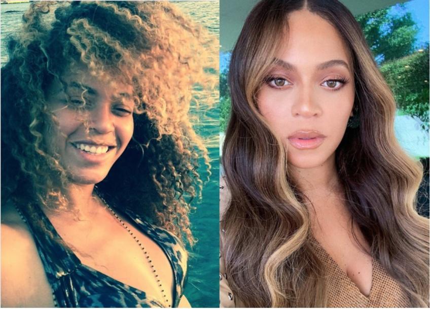 Ces célébrités qui ont un jour assumé leurs cheveux naturels !