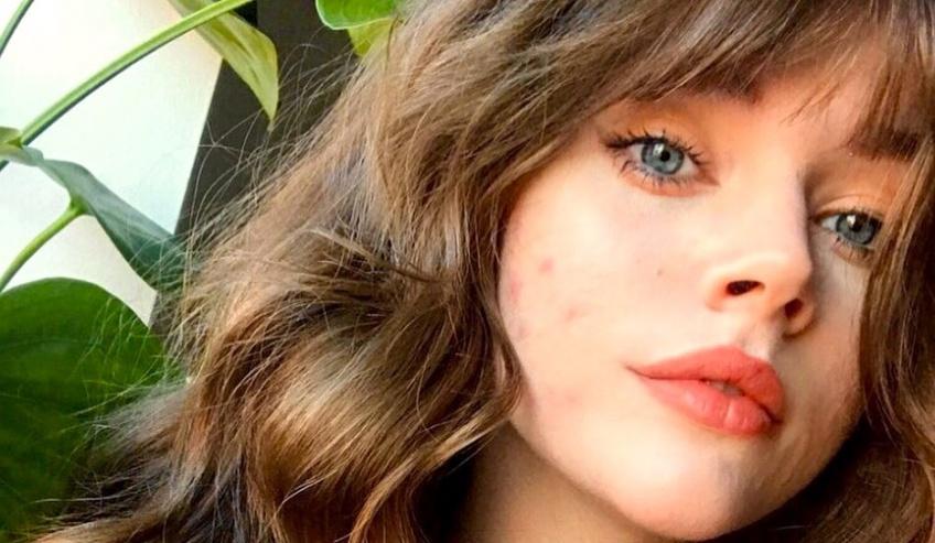 Coup de boost : les secrets pour accepter son acné !