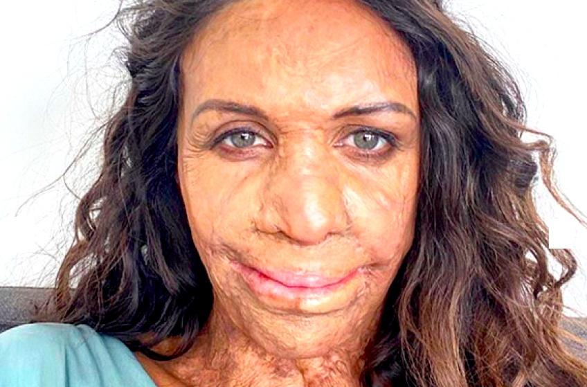 #BodyGlory : Turia, cette femme brûlée qui lutte pour le body positivisme !