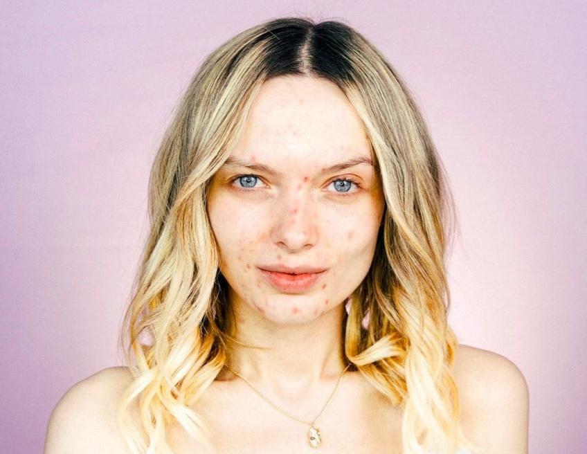 #BodyGlory : Em Ford, la mannequin et blogueuse qui se bat contre les diktats de la beauté !