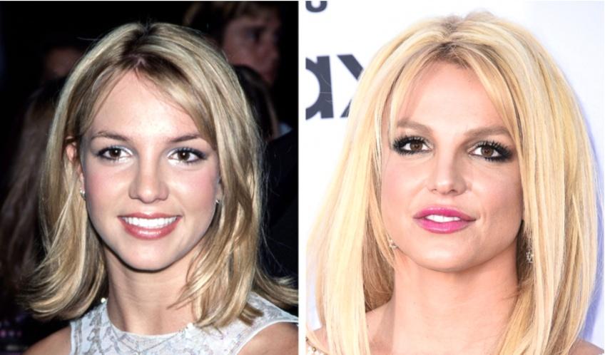 Ces stars qui assument d'avoir eu recours à la chirurgie esthétique !