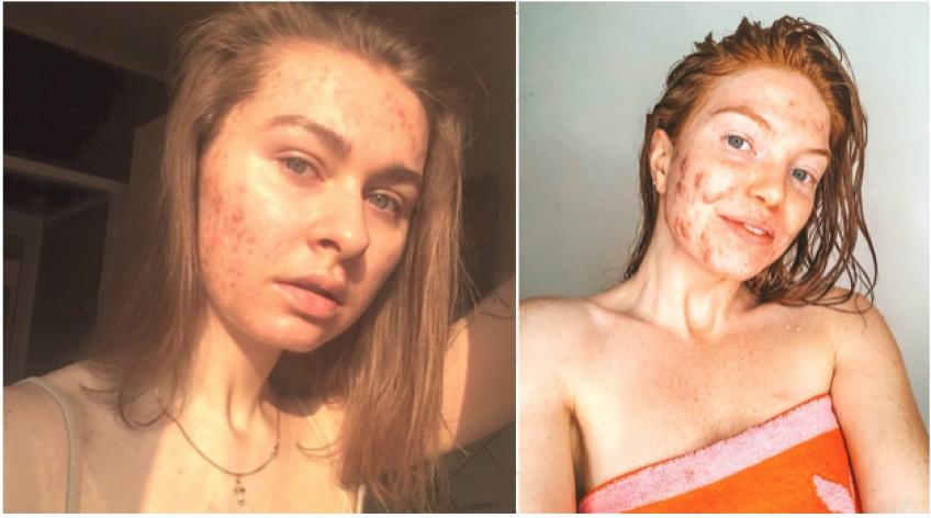 # BODYGLORY : 5 comptes Instagram qui assument leur acné !