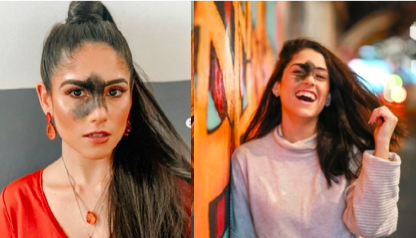 #BodyGlory : Marina Mendez assume fièrement sa malformation !