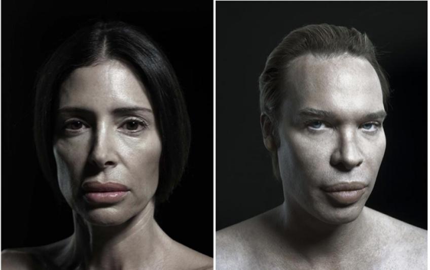 Cet artiste dévoile une série de photos de personnes transformées après des opérations !
