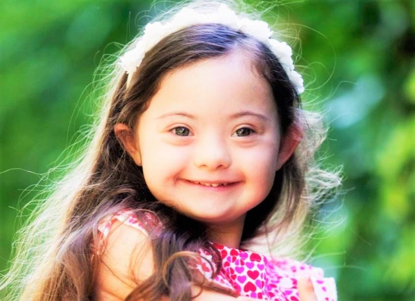Atteinte du syndrome de Down, cette petite fille est une vraie reine de beauté !