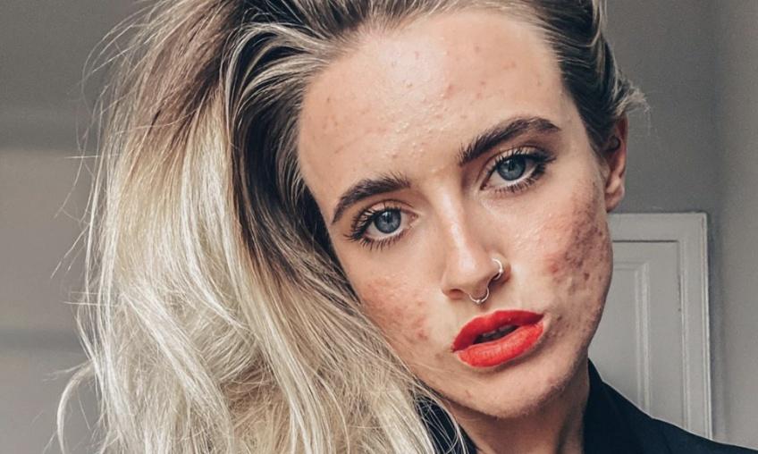 Elle partage des photos sans maquillage pour inciter les autres à aimer leur peau !