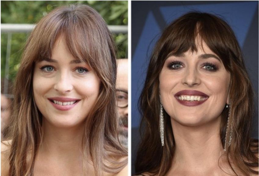 Ces 20 célébrités qui ont soudainement transformé leur sourire !