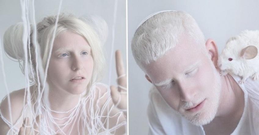Cette séance photo des personnes albinos va vous émouvoir !
