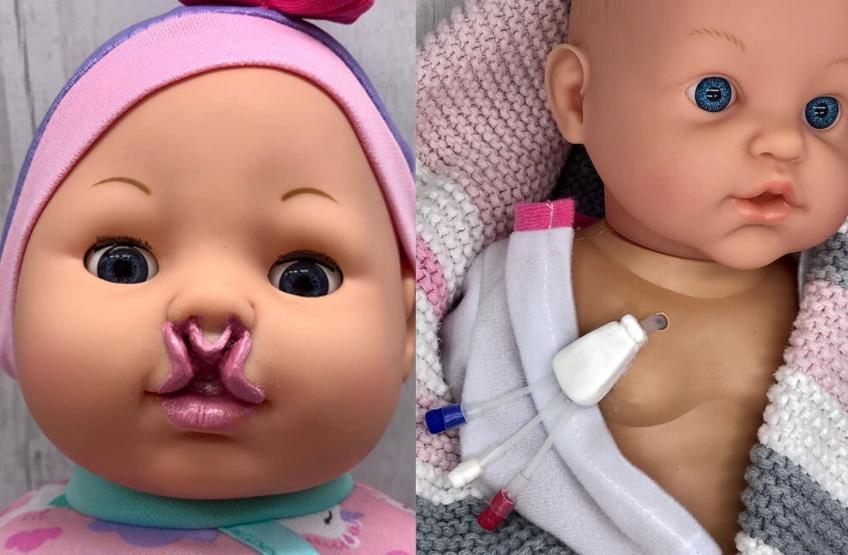Cette maman fabrique des poupées inclusives pour les enfants malades !