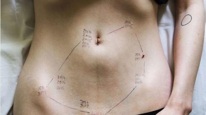 Santé : pour lutter contre l'endométriose, une campagne de dons lancée en mars