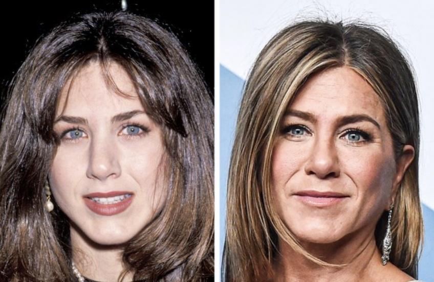 Ces avant/après de célébrités entre aujourd'hui et il y a 30 ans !