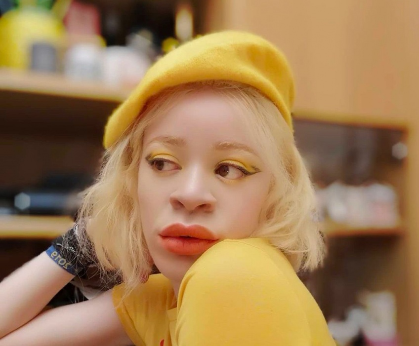 #BodyGlory : Atteinte d'albinisme, Doria partage son histoire touchante !