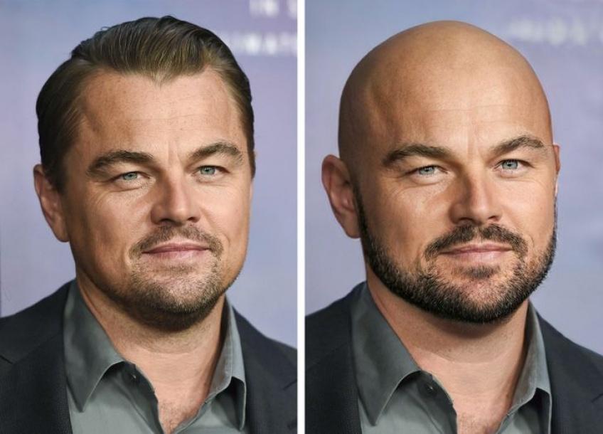 À quoi auraient ressemblé ces hommes célèbres sans cheveux ?