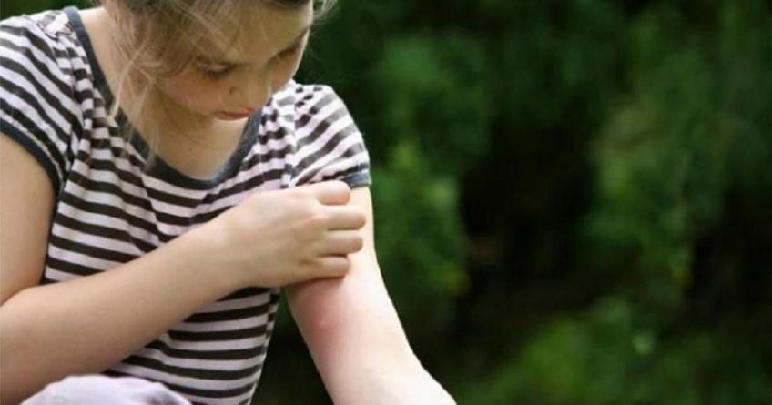 Pourquoi les moustiques piquent-ils certaines personnes et pas les autres ?
