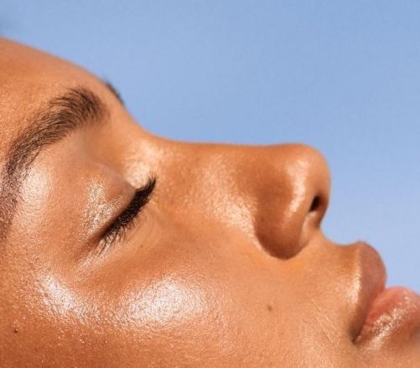 Comment prévenir et guérir les boutons dus au soleil ?