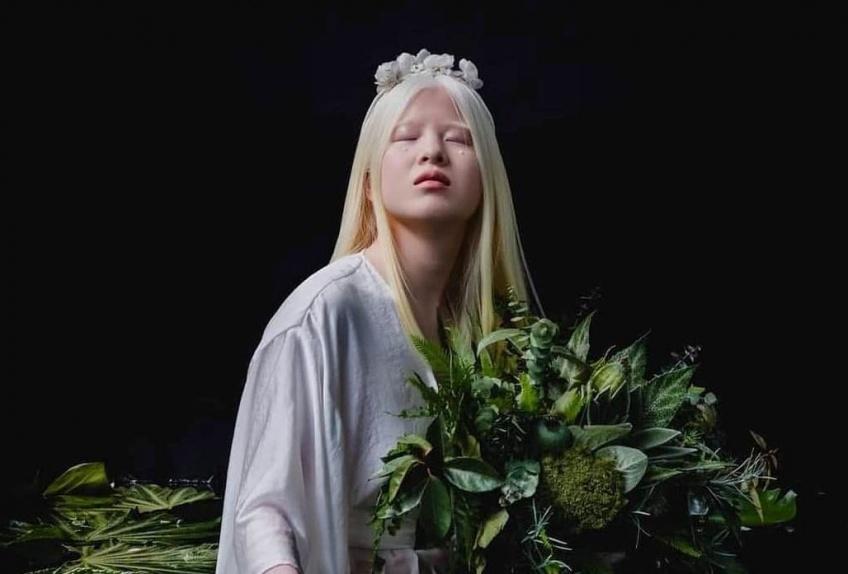 Abandonné à la naissance, ce bébé albinos devient mannequin pour Vogue