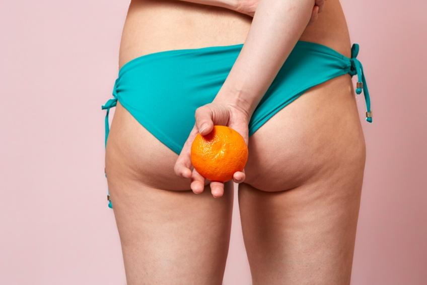 Pourquoi les hommes n'ont pas (ou peu) de cellulite ?