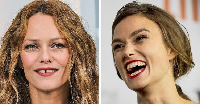 Ces célébrités assument leur sourire imparfait !