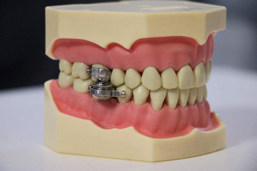 Une 'ceinture de chasteté' pour dents, la nouvelle invention étrange pour perdre du poids