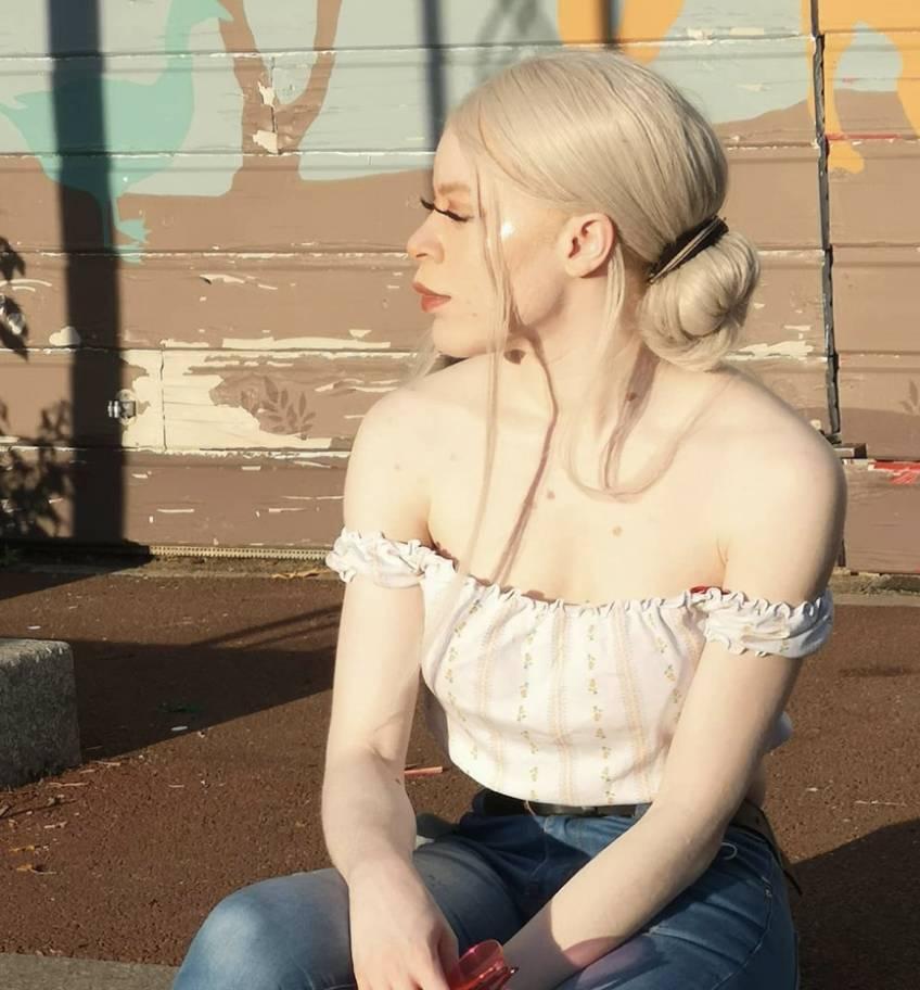 BODY GLORY - Doria atteinte d'albinisme raconte