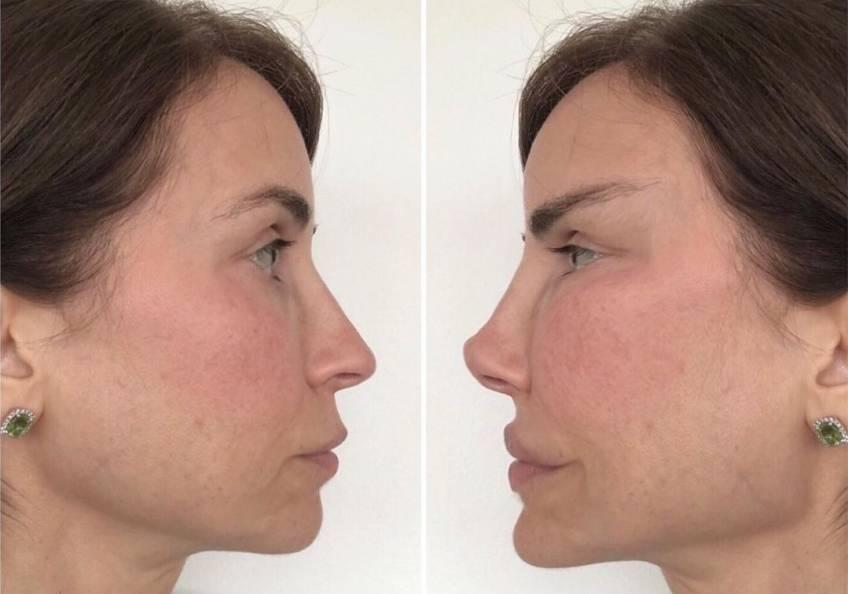 Ce chirurgien plastique dénonce une aliénation due aux excès de Botox