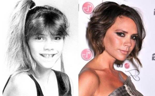 15 choquantes transformations de stars