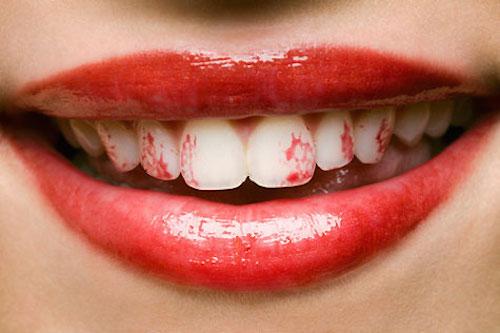 Rouge à lèvre sur les dents