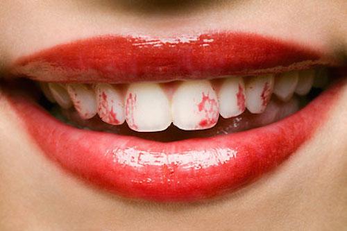 rouge a lèvre sur les dents
